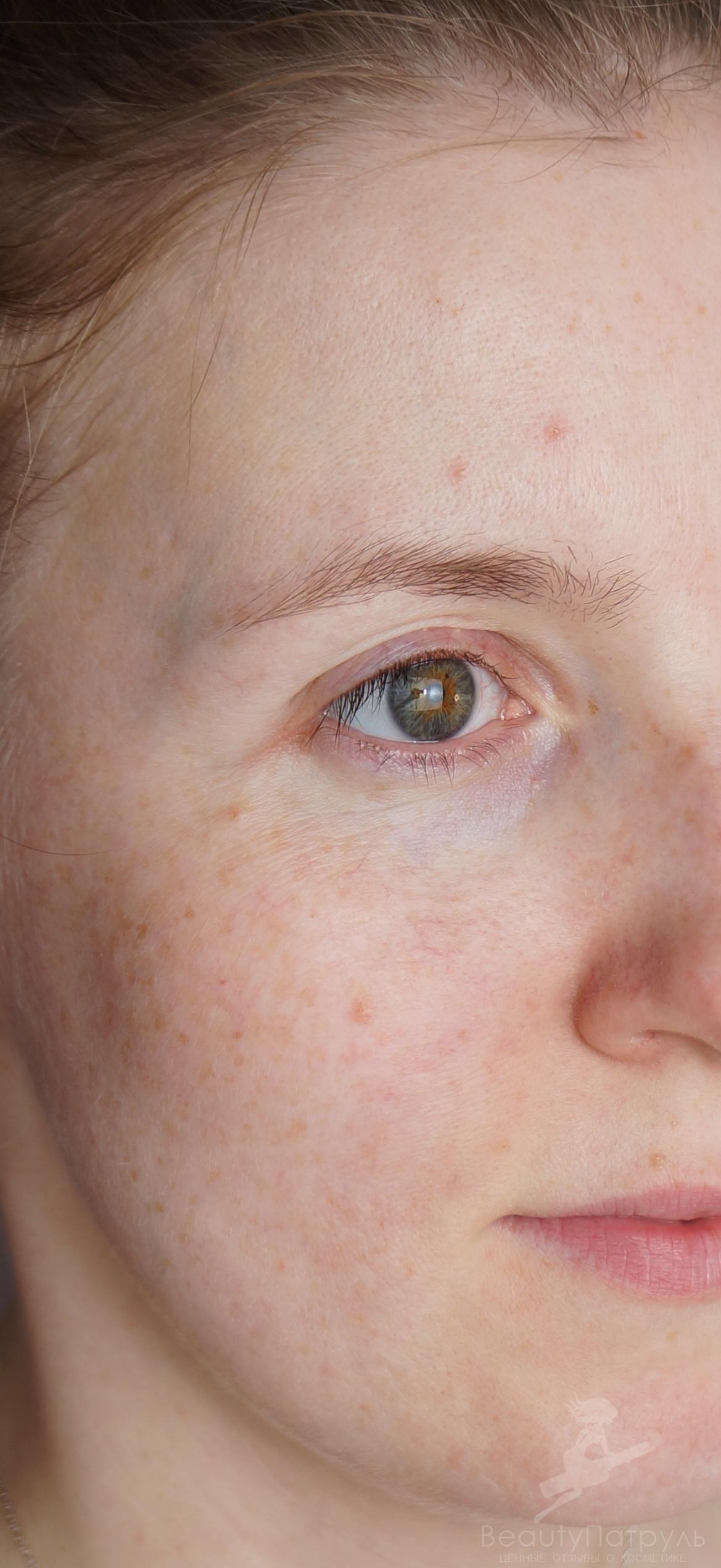 Purederm Eye Mask